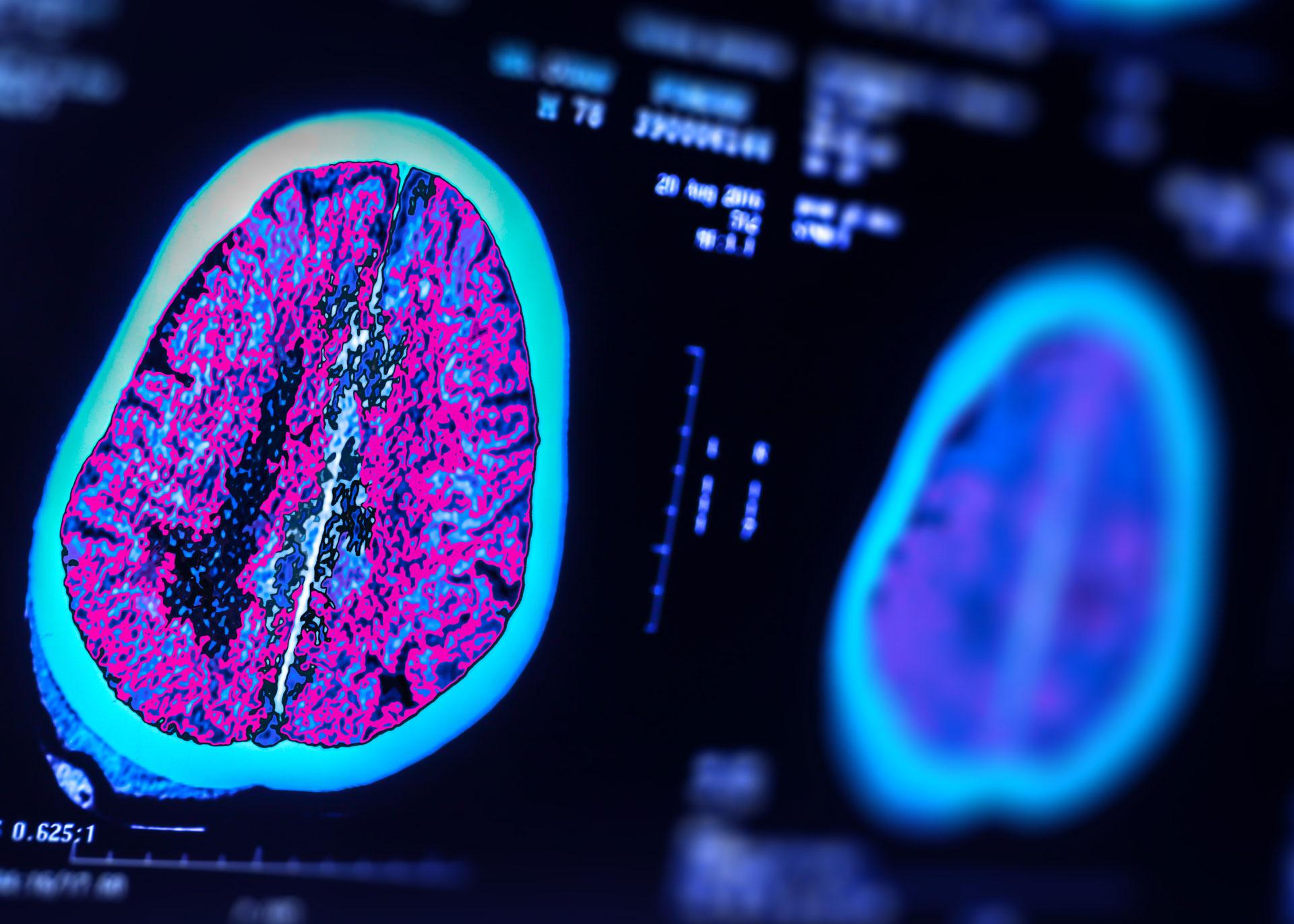 AI harnessed for traumatic brain injury prognosis