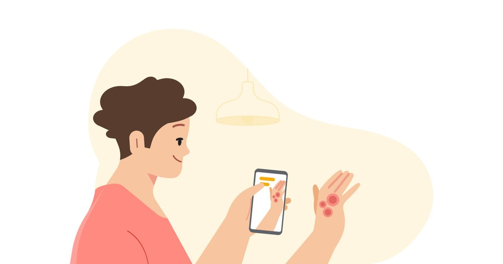 Google will see you now – company reveals AI tool to identify skin conditions